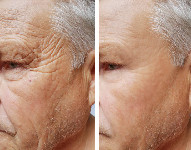 Face wrinkles before and after procedures on an elderly man