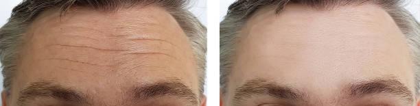 Forehead wrinkles for men in Denver Colorado
