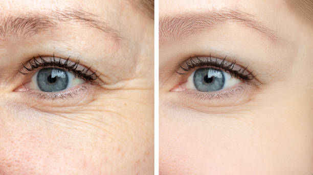 Before and after treatments of wrinkles around the eye - the result of rejuvenating cosmetological procedures of non-invasive/non-surgical botox and pigment spots removal.
