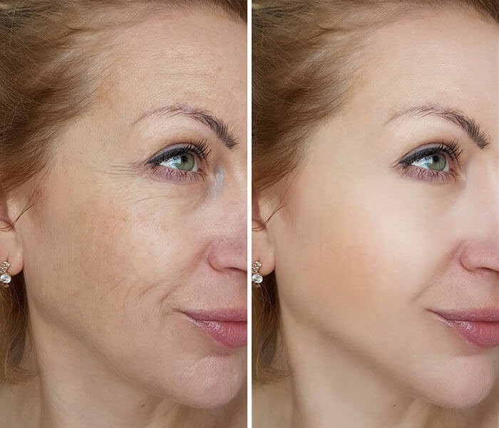 Smooth skin after microneedling