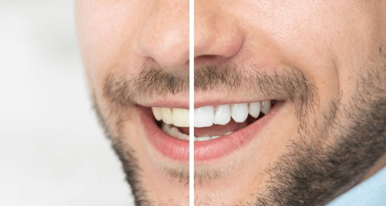 A mans Beautiful white teeth