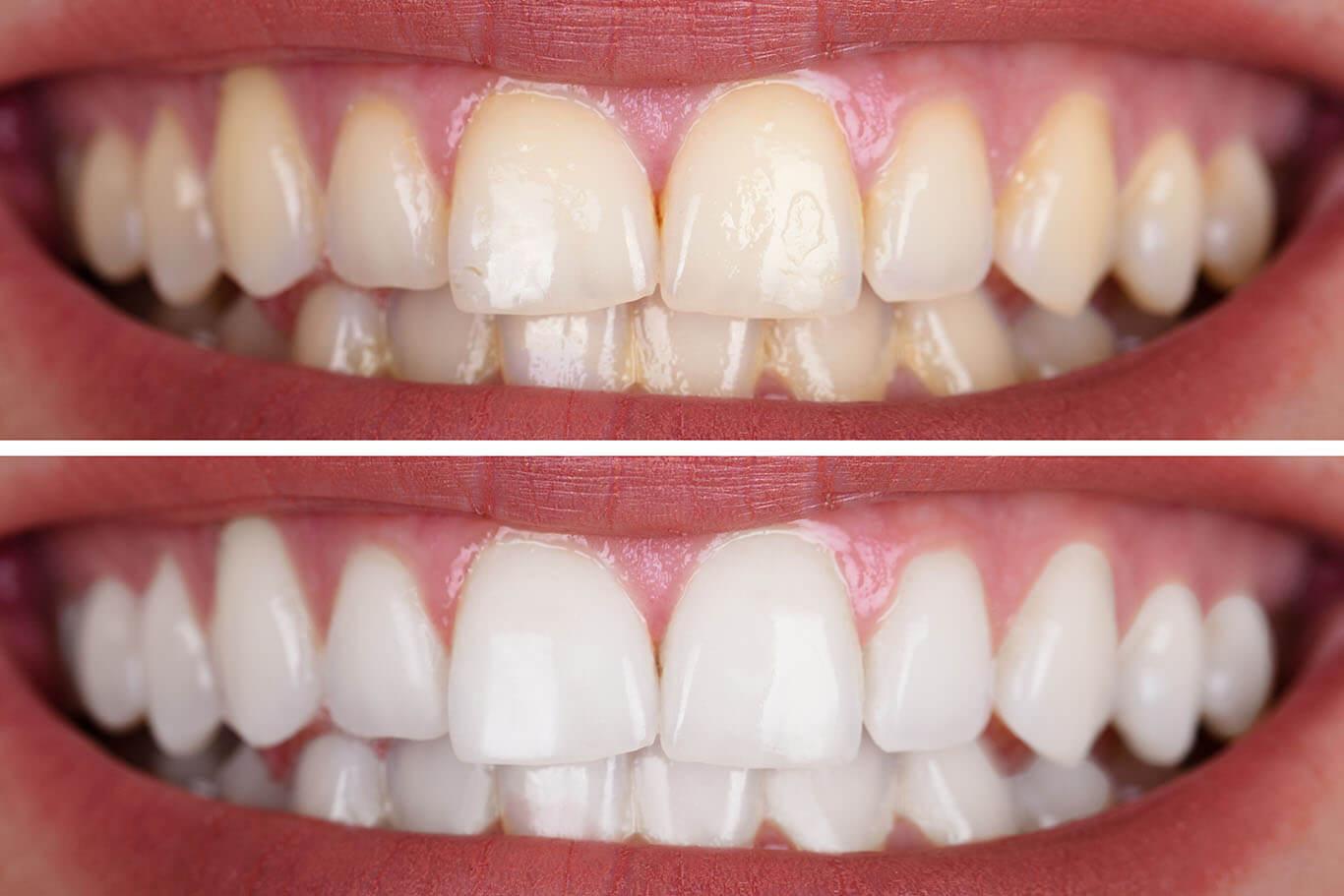 Zoom teeth whitening in Denver