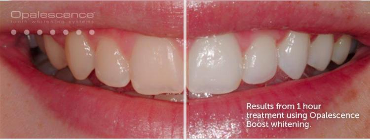 Opalescence Teeth whitening in Denver