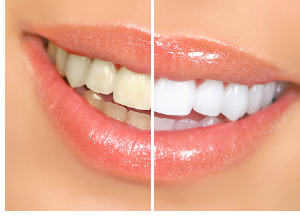 Teeth whitening before and afters